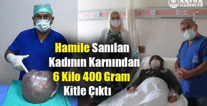 Hamile Sanılan Kadının Karnından 6 Kilo 400 Gram Kitle Çıktı
