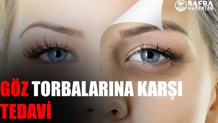 Göz Altı Morlukları Nasıl Geçer? Göz Altı Morlukları İçin Krem Önerileri Nelerdir? Güncel 2021
