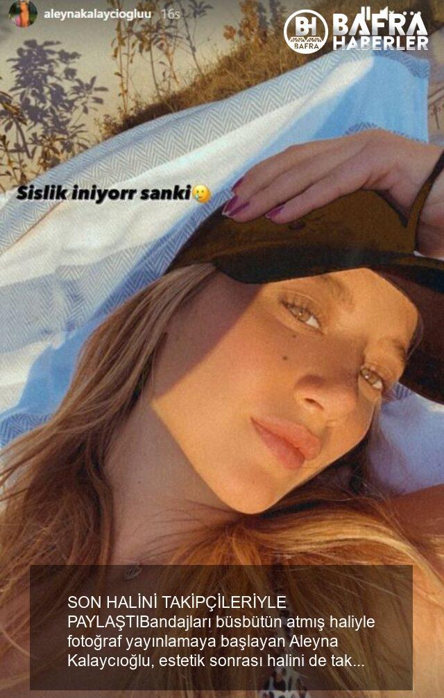 estetik ameliyat olan aleyna kalaycıoğlu son halini takipçileriyle paylaştı 4