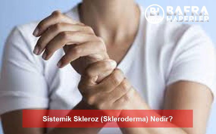 sistemik skleroz (skleroderma) nedir? 2