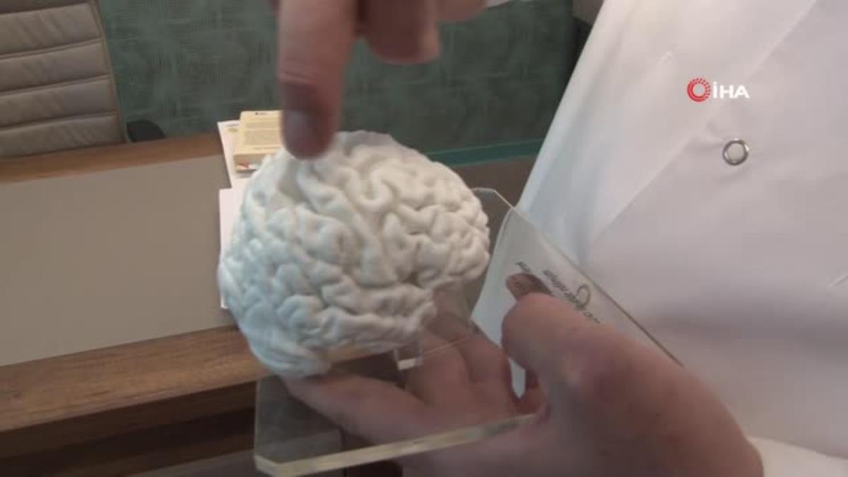 türkiye'de bir ilk: 3d yazıcı ile insan beyninin birebir kopyası yapıldı 6